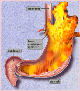 Can gerd in being pregnant is tums secure  Stomach Acid Trigger Throat a weight loss program to cease acid burn  Mucus